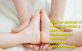 Комплекс упражнений от плоскостопия у детей