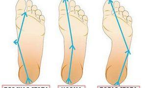 Комплекс упражнений при плоскостопии у взрослых