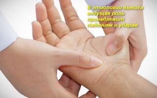 Подробно про симптомы и эффективное лечение вывиха кисти руки