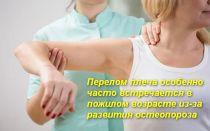 Про реабилитацию после перелома плечевой кости со смещением