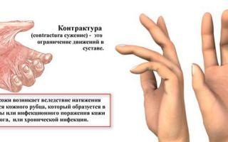 Лечение и комплекс ЛФК при контрактуре пальцев рук