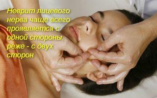 Особенности массажа и ЛФК при неврите лицевого нерва