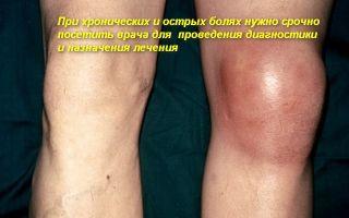 Что делать, опухло колено без ушиба и больно ходить