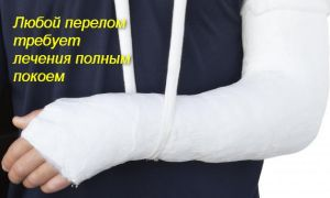 Упражнения для разработки локтевого сустава после перелома