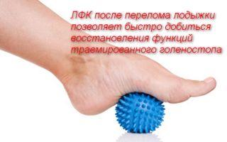 Восстановительные упражнения после перелома лодыжки