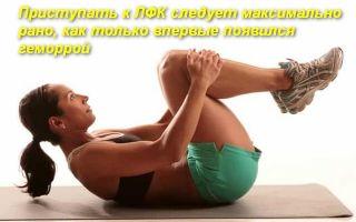Комплекс лечебной гимнастики (ЛФК) при геморрое