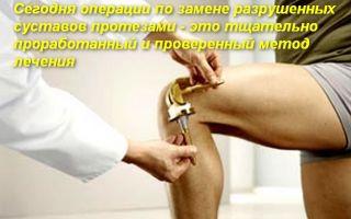 Упражнения ЛФК после эндопротезирования коленного сустава