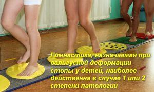 Комплекс ЛФК при вальгусной деформации стопы у детей