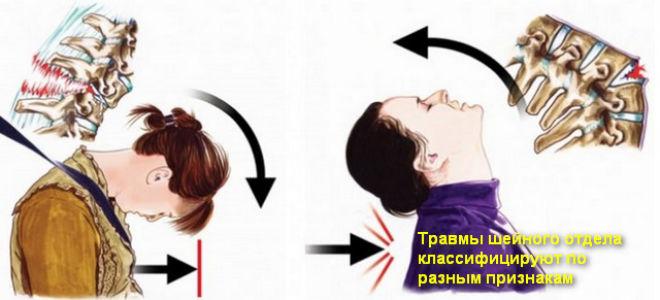 Лечение и последствия после травмы шейного отдела позвоночника