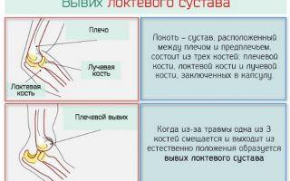 Как правильно вправить и лечить вывих локтевого сустава