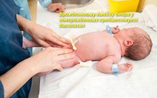 Как лечить вывих тазобедренного сустава у новорожденных