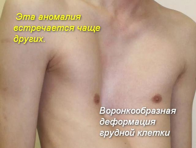 вогнутый вид грудной клетки
