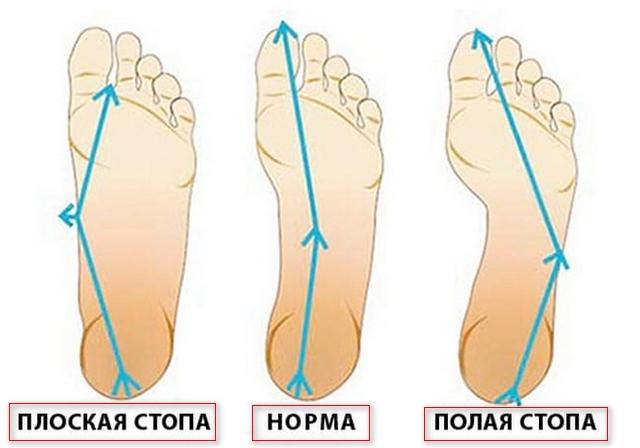 3 вида стопы