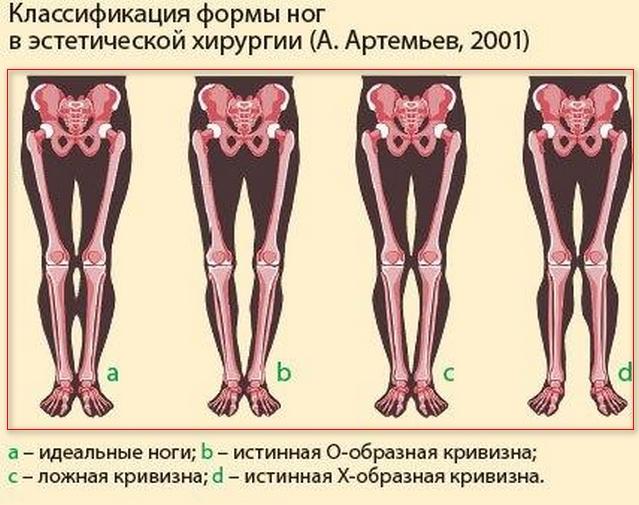 классификация формы ног