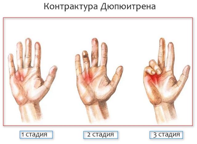 3 стадии болезни