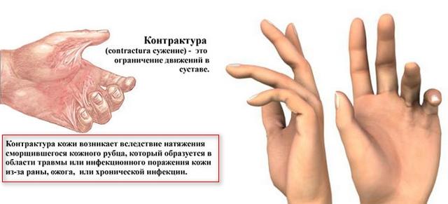 описание болезни и 2 рисунка к нему